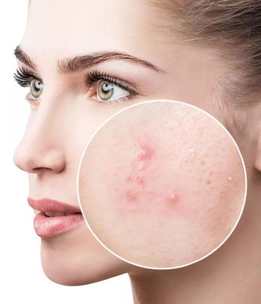 arctisztító kozmetikai kezelés